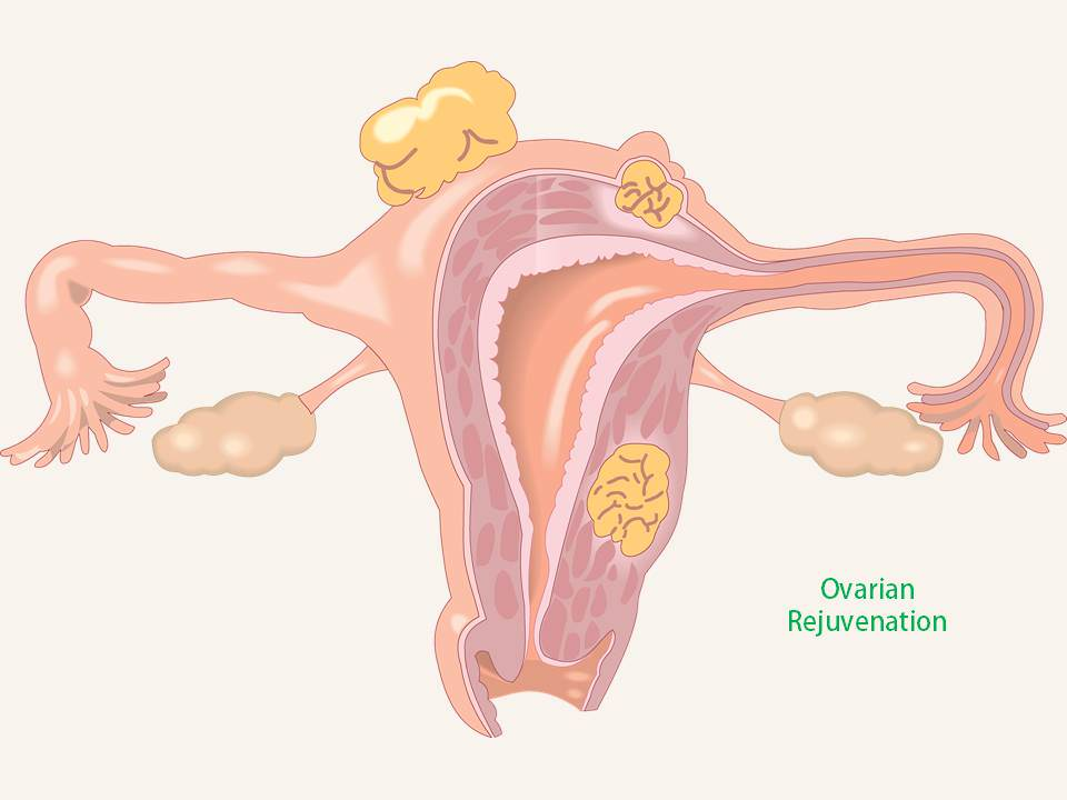 Ovarian Rejuvenation